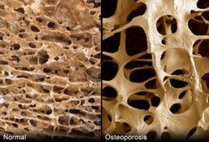 hueso-normal-y-con-osteoporosis