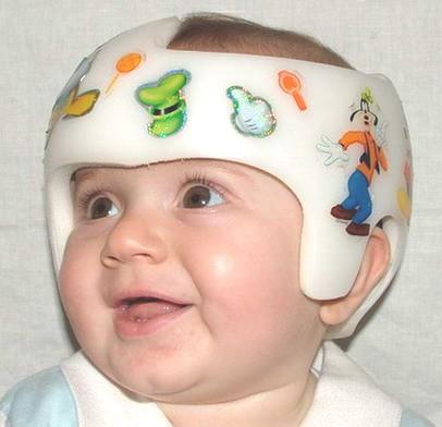plagiocefalia casco